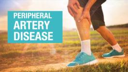 Vascular Health - Peripheral Artery Disease Simulation